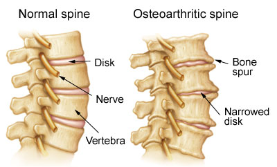 osteoarthritis is common in weight bearing joints.