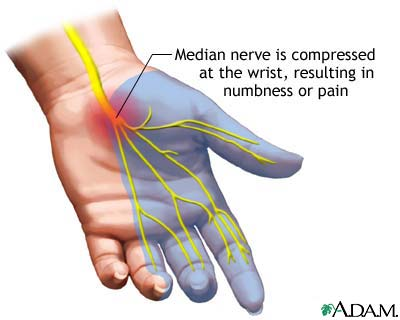 chiropractic is an effective carpal tunnel syndrome treatment option