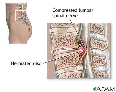 disc bulge treatment options