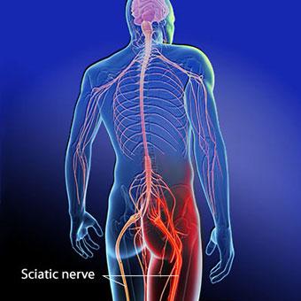sciatica causes back & leg pain.