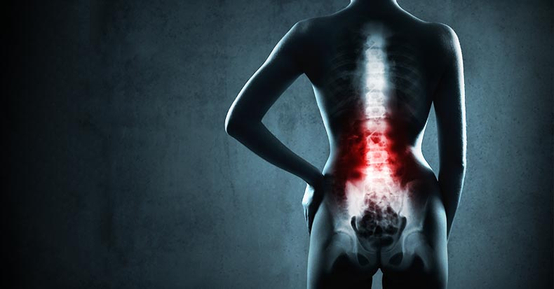 Why Do Chiropractors Use X-rays?