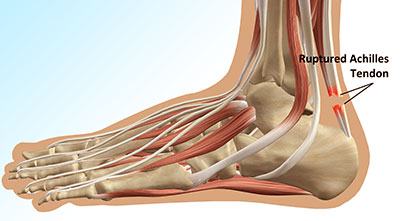 Can Chiropractors Treat Achilles Tendon Injuries?
