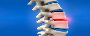 "You Asked Us: ""Do I Really Have A Slipped Disc?"""