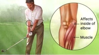 Golfers Elbow is also named Medial Epicondylitis