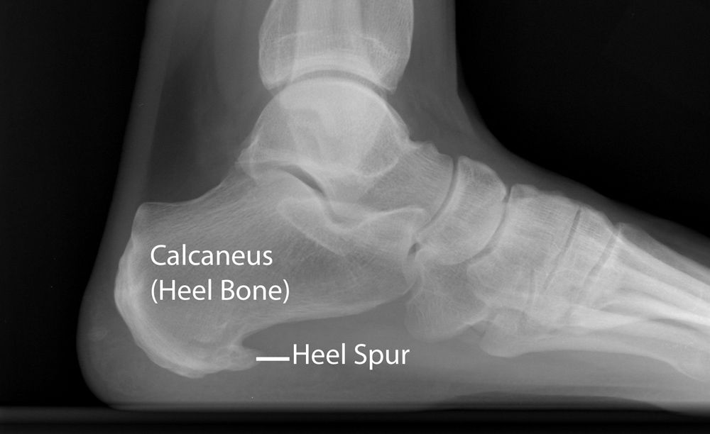 Heel Spur can be shown on a X-ray.