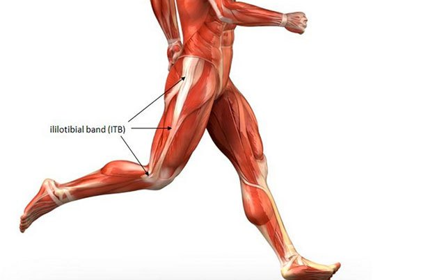 Iliotibial band syndrome is common in athletes.