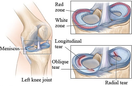 knee meniscus injury